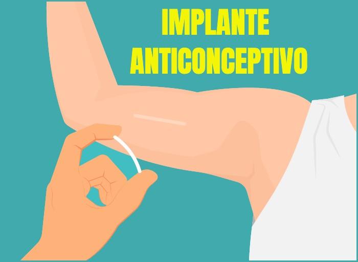 Implante Anticonceptivo. Ventajas y desventajas