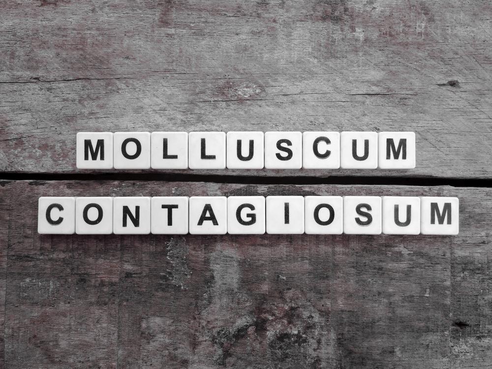 ¿Cómo se contagia el Molusco? | Molusco contagioso en adultos