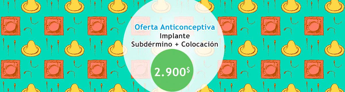 Implante subdérmico