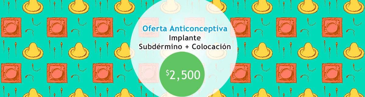 Implante Subdérmico $2,500
