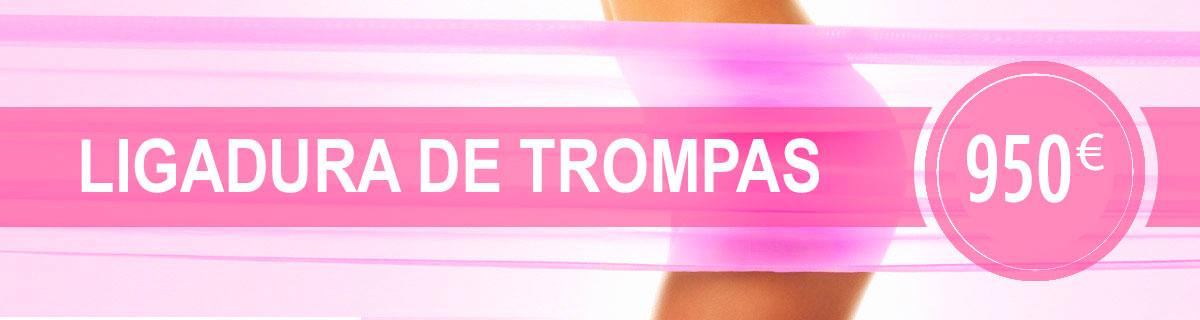 Promoción Ligadura de Trompas